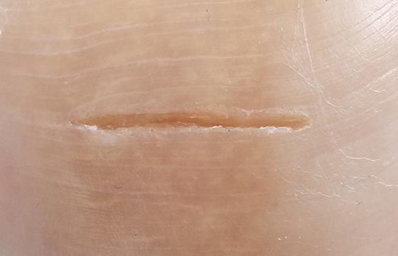 SOLASE Super-Pulse mode lazer cut