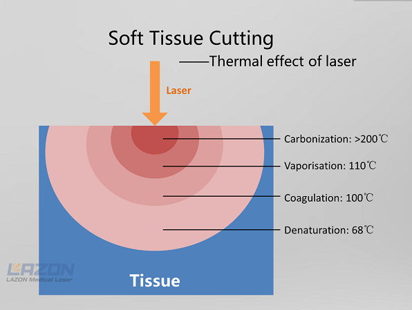 Laser Soft tissue cutting